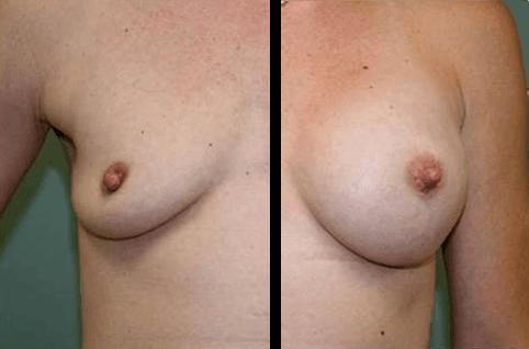 Breast Augmentation DC