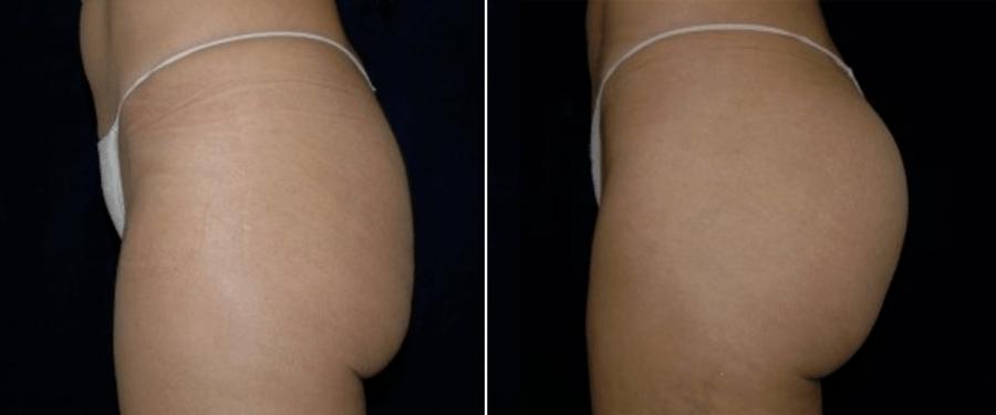 Brazilian butt lift dc