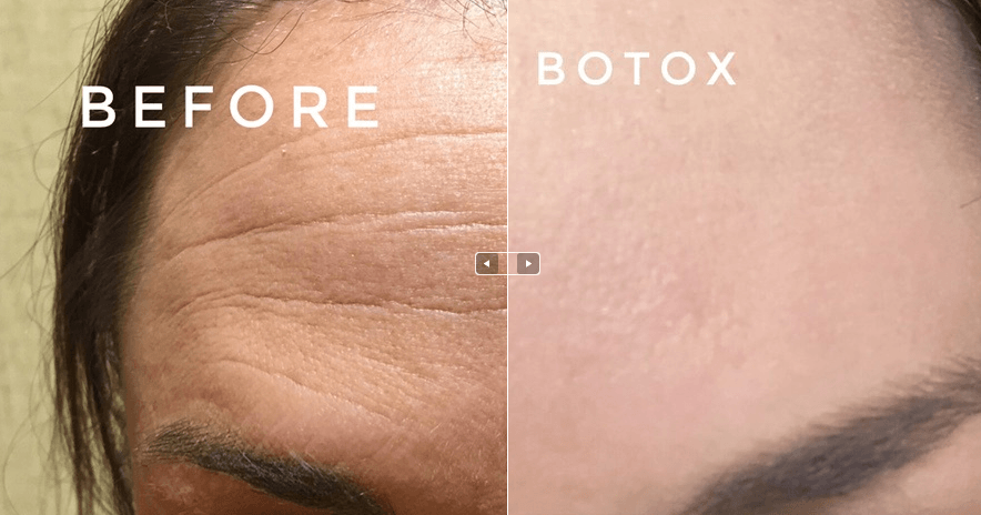 Top DC Plastic Surgeons and Botox Administration