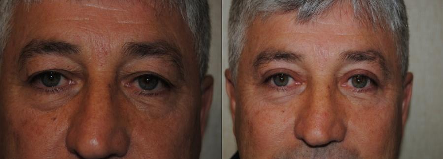 DC Eye Lift Surgery
