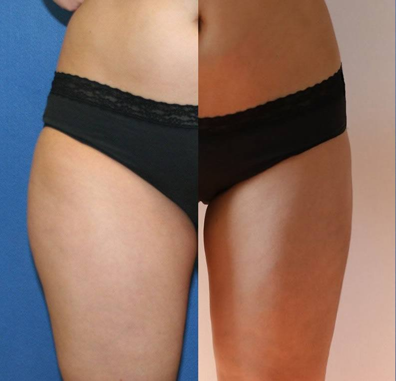 Liposuction DC