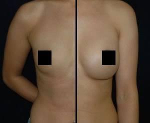 Breast Enlargement DC