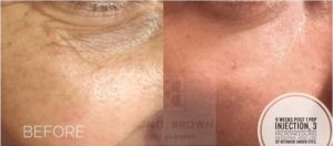 microneedling with PRP before and after Washington DC