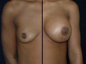 Breast Implants DC