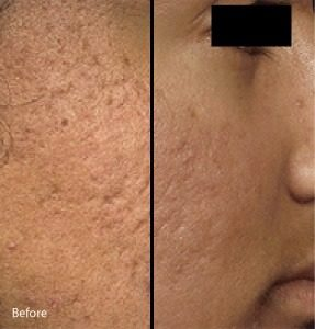 Micro-needling with PRP