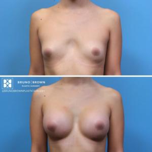 DC Breast Augmentation Procedure