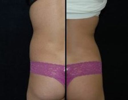 Liposuction DC