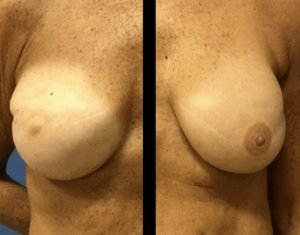 Prepectoral breast reconstruction results