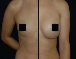 DC BREAST AUGMENTATION