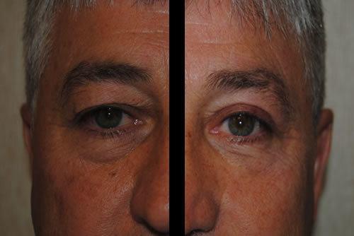 Washington DC Blepharoplasty - DC Eyelid Surgery