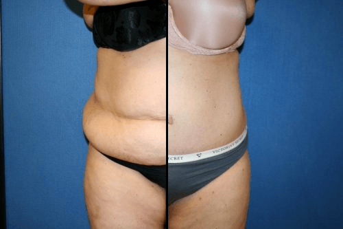 Washington DC Top Tummy Tuck Before and After