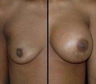DC Breast implants