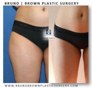 in office liposuction