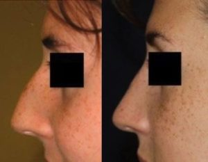 Chevy Chase Rhinoplasty Nose Job Before and After