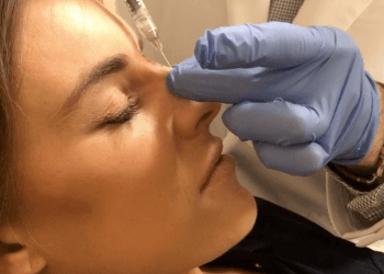 Washington DC Nonsurgical Nose Job