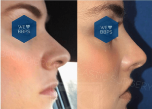 Liquid Rhinoplasty DC