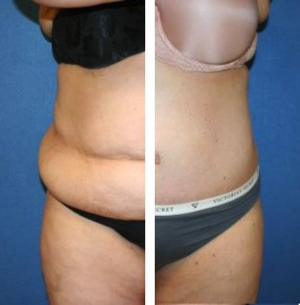 Tummy Tuck Procedure Washington DC