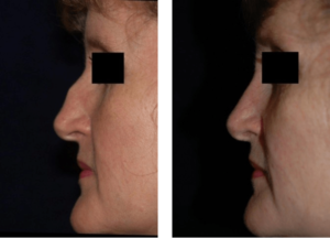 Rhinoplasty DC Nose Job Before and After