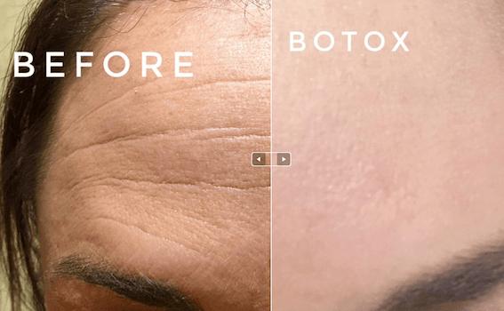 Botox in Potomac, MD