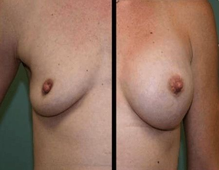 Breast Augmentation in Annandale, VA
