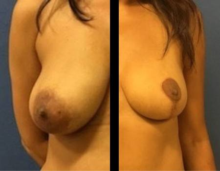 Breast reconstruction in DC