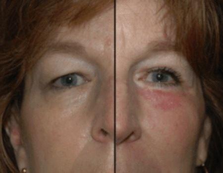Dulles, VA Eyelid Surgery