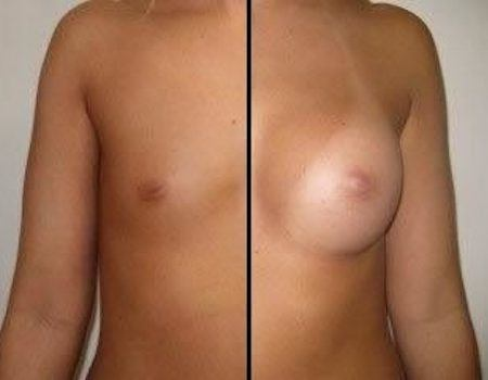 Breast Implants in Bethesda, MD