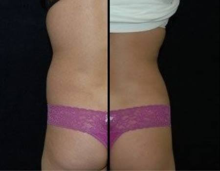 Liposuction in Dulles, VA