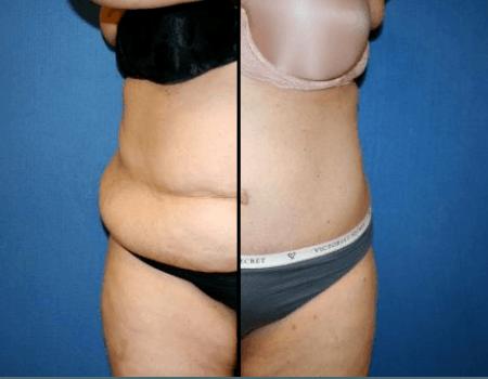 Annandale Tummy Tuck