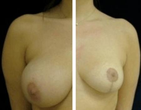 Breast Reduction in Tysons Corner, VA