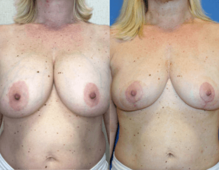 Breast Reduction DC