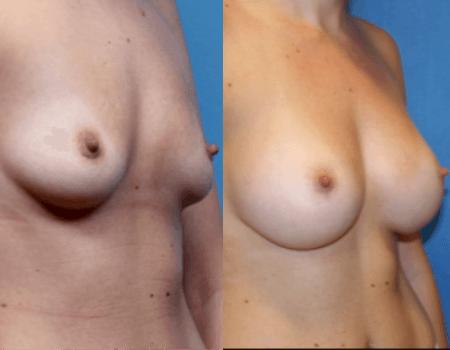 Breast Implants DC