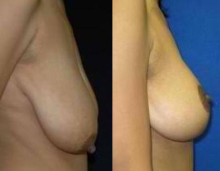 Breast Life Bethesda