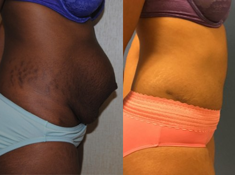 Body Contouring Procedures in DC