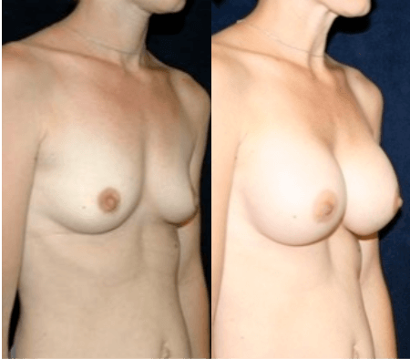 Breast Augmentation in DC