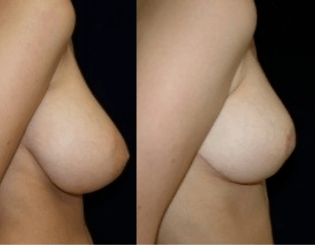 DC Breast Reduction