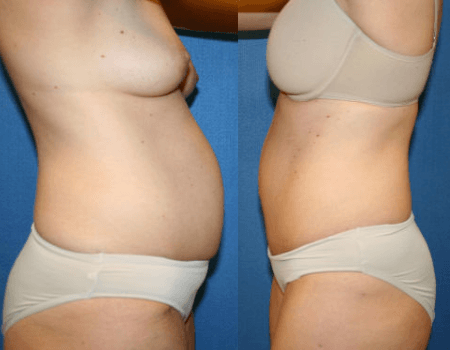 Tummy Tuck in DC
