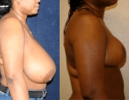 Breast Reduction in DC