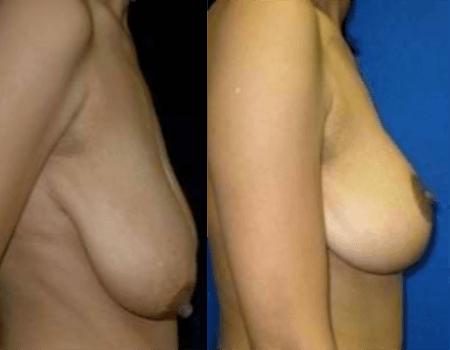 Breast Lift in DC