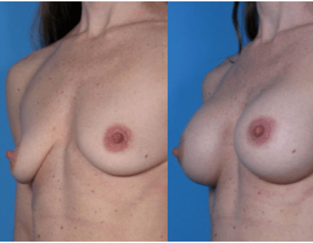 Breast implants Bethesda