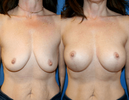Washington DC Breast Lift