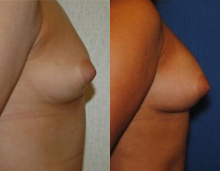 Fat Grafting Breast Augmentation DC