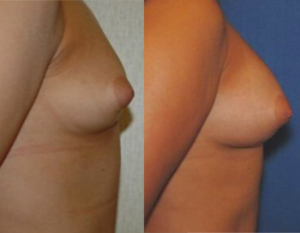 Before and after breast augmentation using fat grafting