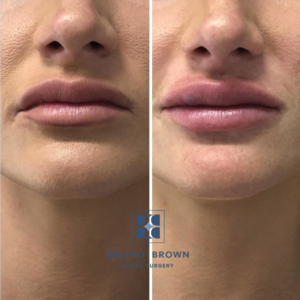 Lip Filler DC