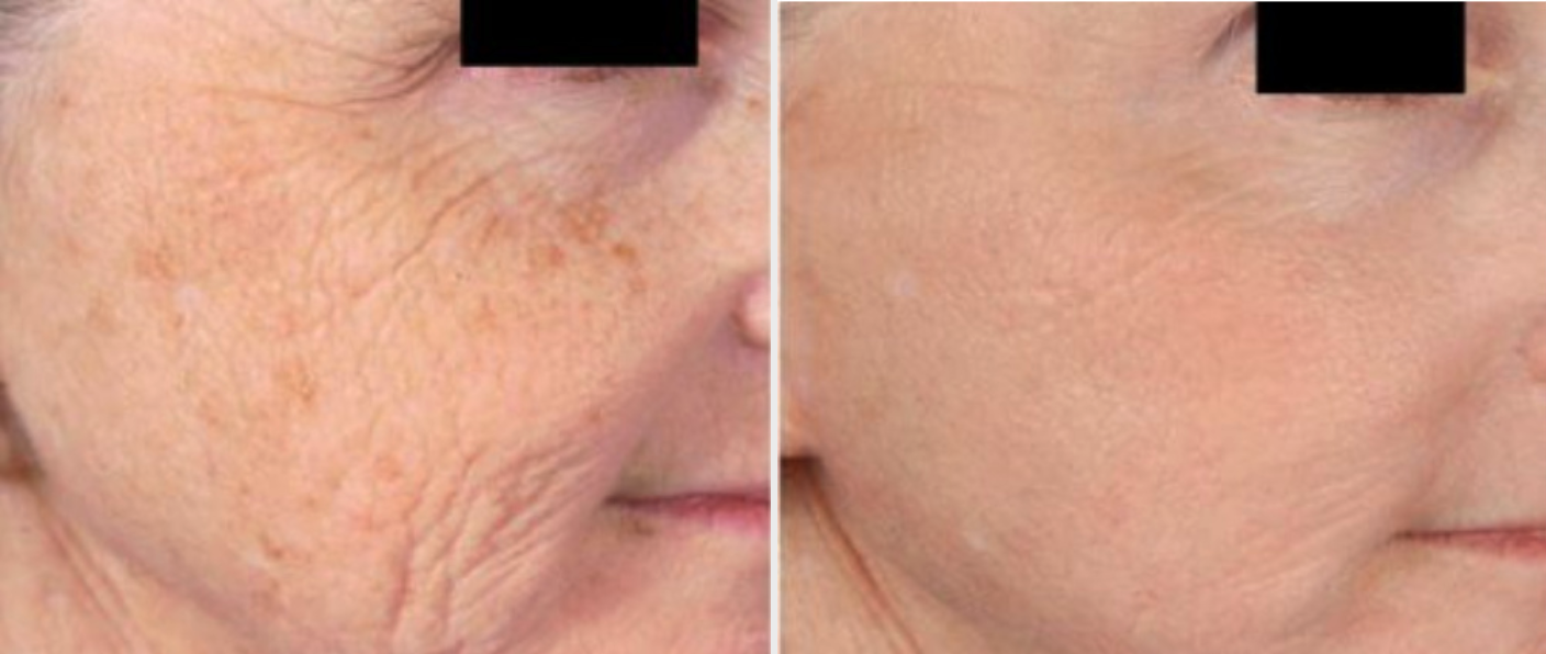 Microneedling B and A
