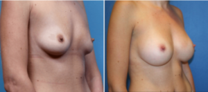 DC Breast Augmentation Specialists