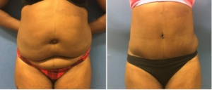 Tummy tuck procedure before and after